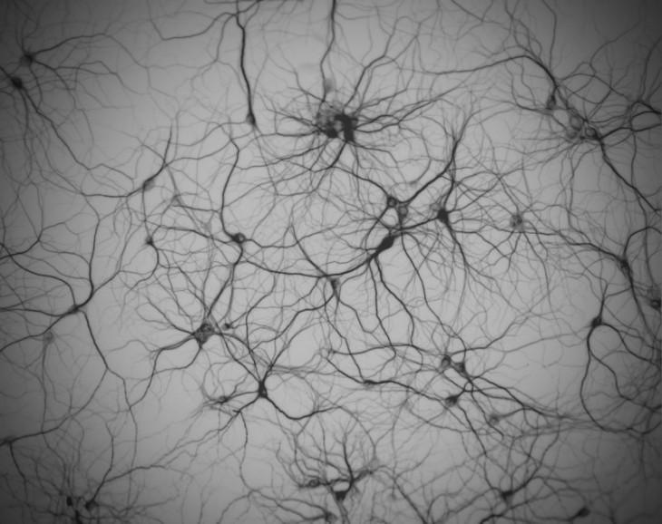 neuron-network12