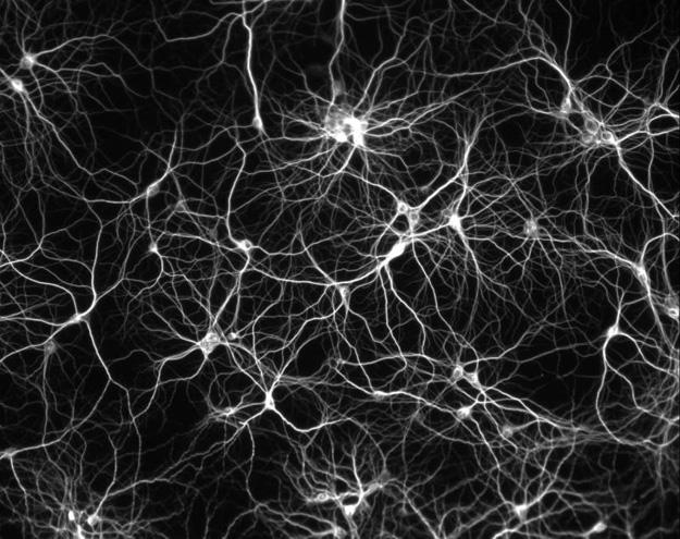 neuron_culture